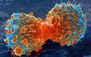 znakovi upozorenja rak raka